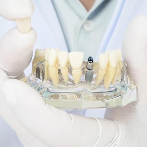 Implantes. Alaia Clinica Dental. Hernani. Gipuzkoa