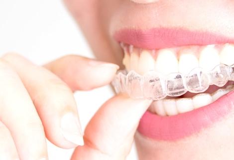Ortodoncia invisible. Alaia Clinica Dental. Hernani. Gipuzkoa