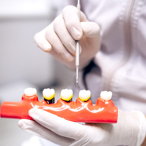 Periodoncia. Alaia Clinica Dental. Hernani. Gipuzkoa