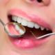 Centro Odontológico Alaia - Clínica Dental en Hernani - Dentistas en Hernani - Salud boca verano